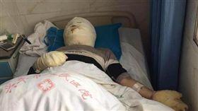男帶氫氣球搭電梯圖爆炸,6人慘遭嚴重燒傷送醫。(圖/翻攝新浪網)