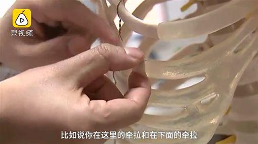 29歲男感冒咳嗽咳到肋骨斷裂,連醫師也驚呆。(圖/翻攝梨視頻)
