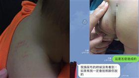 1歲兒生殖器竟有「網狀烙痕」 父怒控保母吹風機施虐(圖/爆怨公社)