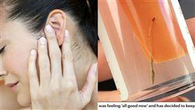 女子耳朵痛求診 醫生檢查一看驚呆:裡面長草了!(圖/Daily Mail,每日日報)