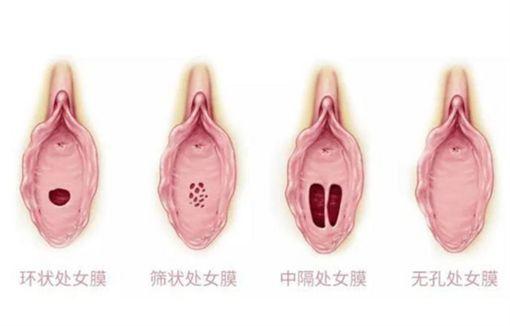 處女膜,性行為,孔洞,篩狀,環狀,