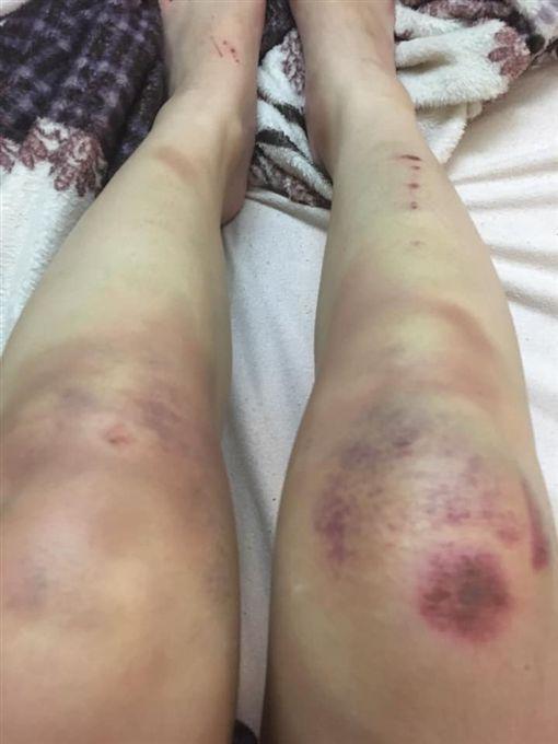 女網友遭女鬼拉腳,摔成雙腿瘀青。(圖/翻攝自靈異公社)