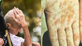 沒性生活也中鏢?8旬老翁衰染梅毒 醫師曝恐怖真相 圖/翻攝網易新聞,pixabay