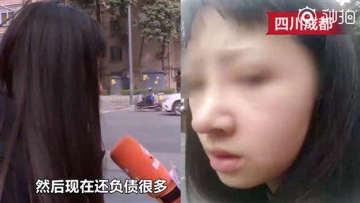 整形,失敗,少女,大陸,/翻攝自微博看看新聞
