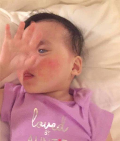 收養「銀眼」孤兒…被罵怪物!美國養父母決定摘除她雙眼 圖/翻攝自 Eryn Austin 臉書
