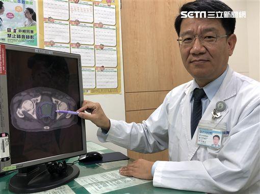 光田綜合醫院,放射腫瘤科,王銘志醫師,憋尿,攝護腺癌,退休,排尿困難,攝護腺