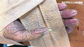 圖/台南奇美醫院提供,手中風