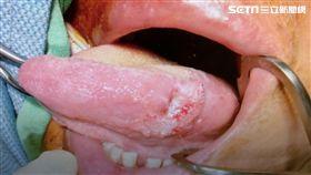 安南醫院,耳鼻喉科,劉金瑞,口腔癌,檳榔,口腔黏膜