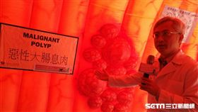 台大醫院內科部消化內科主治醫師李宜家說,透過糞便潛血檢查可以降低7%腸癌死亡風險。(圖/記者楊晴雯攝)