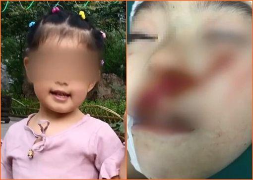 再傳隨機砍童!6歲女童遭怪女毀容 淚訴:為什麼要砍我?圖翻攝自梨視頻