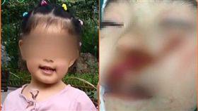 再傳隨機砍童!6歲女童遭怪女毀容 淚訴:為什麼要砍我? 圖翻攝自梨視頻
