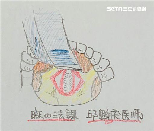 邱豑慶醫師專訪用圖/邱豑慶授權提供