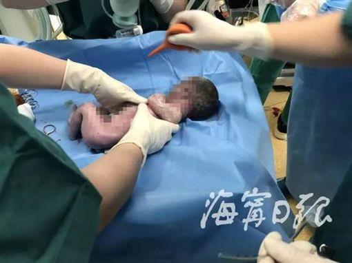 中國大陸,男嬰,早產,早產兒(圖/翻攝自新浪網)
