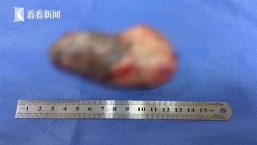 中國大陸男嬰「懷有寄生胎」。(圖/翻攝自看看新聞)