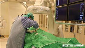 對肝癌患者而言,「肝動脈栓塞化學治療」雖然無法完全治癒腫瘤,但卻適合無法接受治癒性療法,像是手術或射頻燒灼術者。(圖/亞大醫院提供)