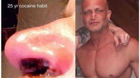 44歲空少吸毒25年,鼻子變爛肉隨鼻涕滴下來。(圖/翻攝自太陽報)
