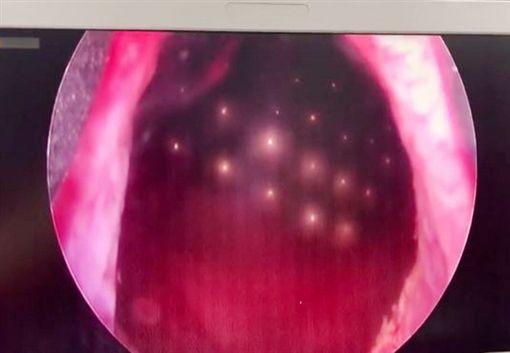 男童塞70顆磁珠進下體 醫手術幫「拉出來」(圖/翻攝自微博)