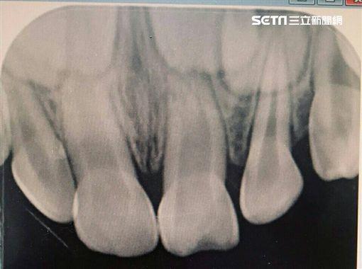 阮綜合醫院,牙科,蔡政峰,植牙,牙齒