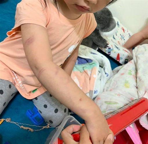 台南,虐童,繼父,體罰,女童,驗傷