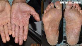 成大醫院,皮膚部,陳郁蓁,皮癬菌感染,香港腳,兩腳一手症候群 圖/翻攝自成大醫院臉書