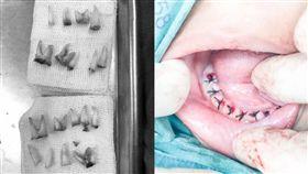 4歲童的牙全爛掉 牙醫都嚇到(圖/中國報)