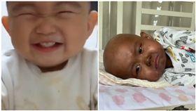 心疼!骨髓移殖後 2歲萌娃變黑人(圖/翻攝自梨視頻)