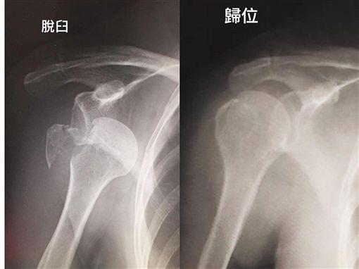 陳美鳳手臂脫臼。(圖/臉書)