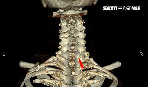 頸椎椎間盤,頸部神經,光田綜合醫院,骨科,嚴可倫,內視鏡微創手術