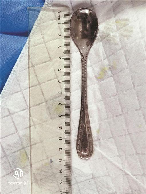 女挖喉嚨魚刺,不慎把整支鐵湯匙吞下去。(圖/翻攝新浪網)