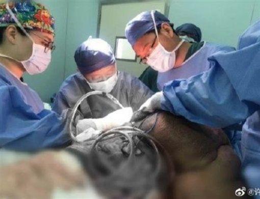 如鐘樓怪人!男巨大腫瘤背30年壓血管 動員100醫手術(圖/翻攝自微博@許牧楸)