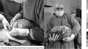 肚痛沒月經!少女子宮驚見15公斤巨瘤(圖/鏡報)