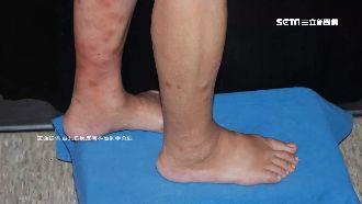 小腿長紅疹…竟罹「癌王」死亡率9成