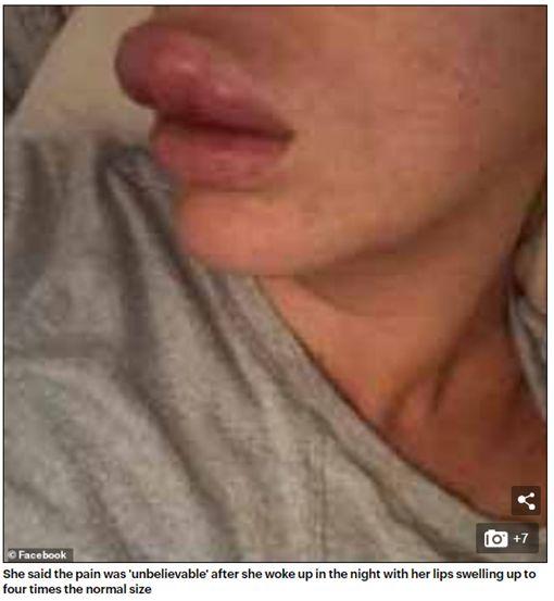 女愛美微整豐唇,一覺醒來腫成4倍大香腸嘴。(圖/翻攝Daily Mail)