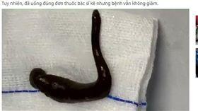 越男咳血一個月 氣管夾出15公分活水蛭(圖/翻攝自Vietnamnet)