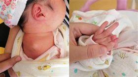 女嬰生下來身體有缺陷,醫師產檢時卻完全沒發現。(圖/翻攝微博封面新聞)