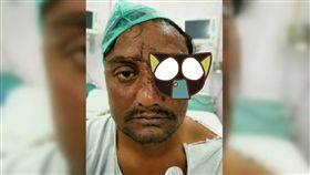 牛,牛角,攻擊,視力,眼球,印度,手術,眼窩,重建,掉出 圖/翻攝自推特