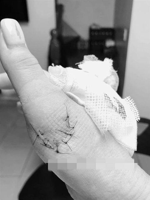 女網友到第二家醫院掛急診重新縫傷口。(圖/翻攝自爆料公社)
