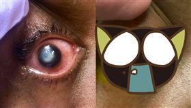 隱形眼鏡,睡覺,角膜,潰爛,隱眼,美國,侵蝕,細菌, 圖/翻攝自臉書 https://parg.co/s1Y