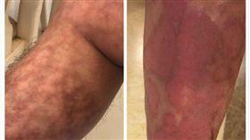 過敏一定治得好?黃鼎殷醫師:排黏液、促微循環就有解! 過敏有救?足蒸腿上竟出現紅紋地圖?
