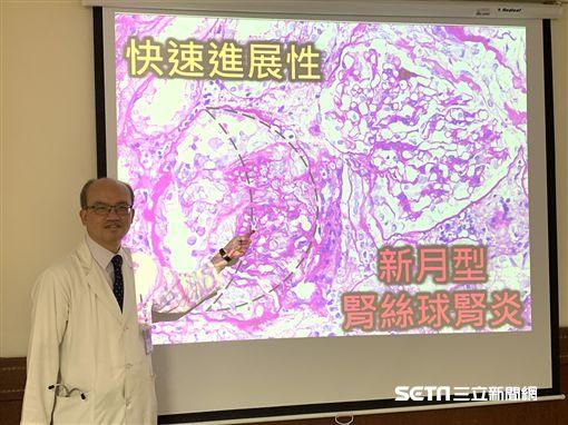 長期乾咳竟是腎臟出問題/中山醫學大學附設醫院提供