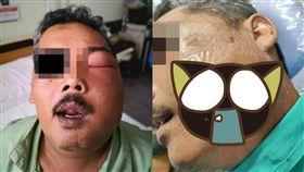 馬來西亞,牙痛,煞車油,機車,偏方,膿包,蜂窩性組織炎 圖/翻攝自臉書