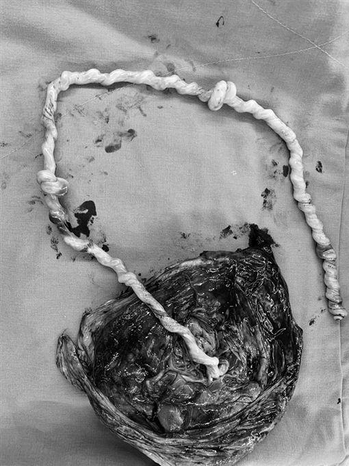 孕婦臨盆臍帶「打2死結」胎兒活著 施景中:世上有奇蹟(圖/施景中醫師提供)