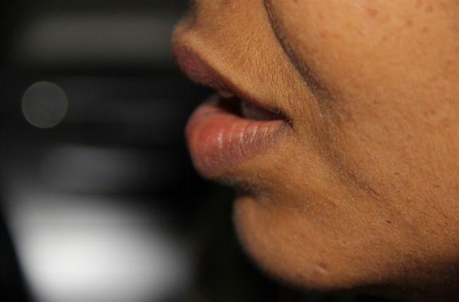 40歲男罹口腔癌!手術當天「人間蒸發」 再回診下場超慘
