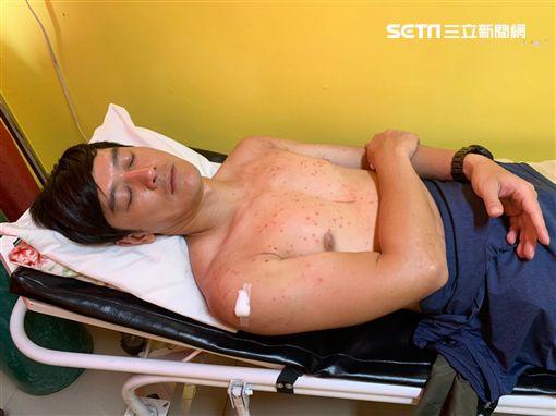 張勛傑《世界第一等》造訪菲律賓、罹患病毒疹圖/八大電視提供