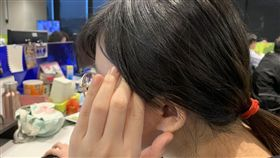 頭痛,偏頭痛,青春痘,頭暈,示意圖,不用寫記者名,寫資料照