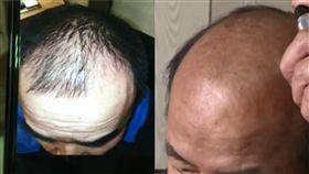 (圖/翻攝自微博)中國,生髮水,禿頭