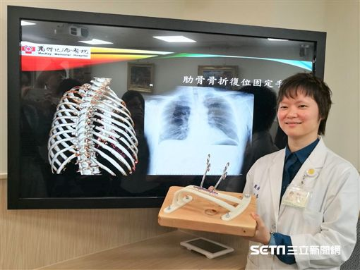 醫師楊于慧肋說明肋骨復位手術過程。(圖/記者楊晴雯攝)
