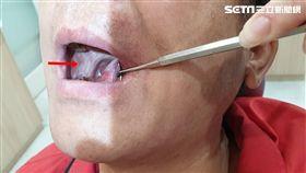 嘴破,破嘴,童綜合醫院,口腔顎面外科,蕭應良,癌病變,惡性腫瘤 圖/童綜合醫院