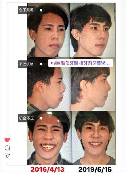 林進/臉書