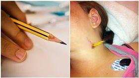 超過「半支筆」沒入她身!11歲女童跌倒,鉛筆竟插進她頸動脈。(圖/翻攝自英國醫學期刊、pixabay)